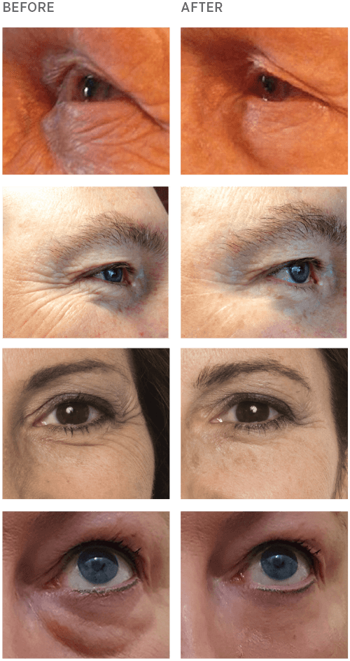 Instantly Ageless Before and After